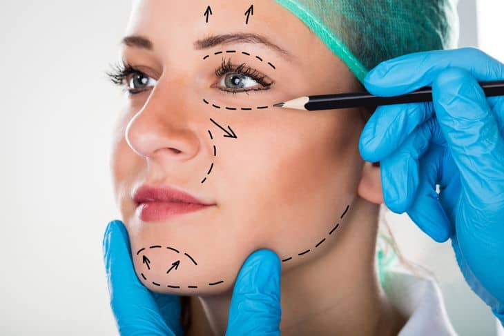 facelift for wrinkles