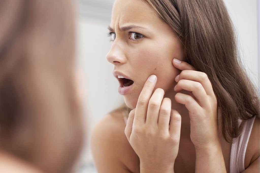 hole from pimple how to heal it