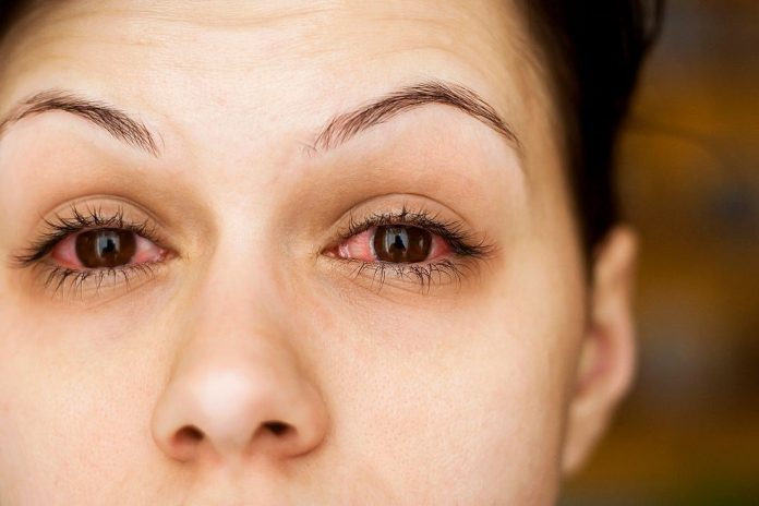 how to disinfect mascara after pink eye