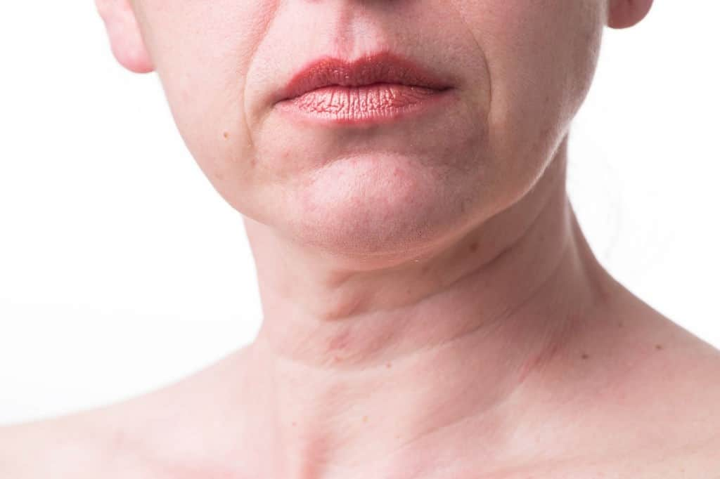 face exercises for wrinkles around mouth