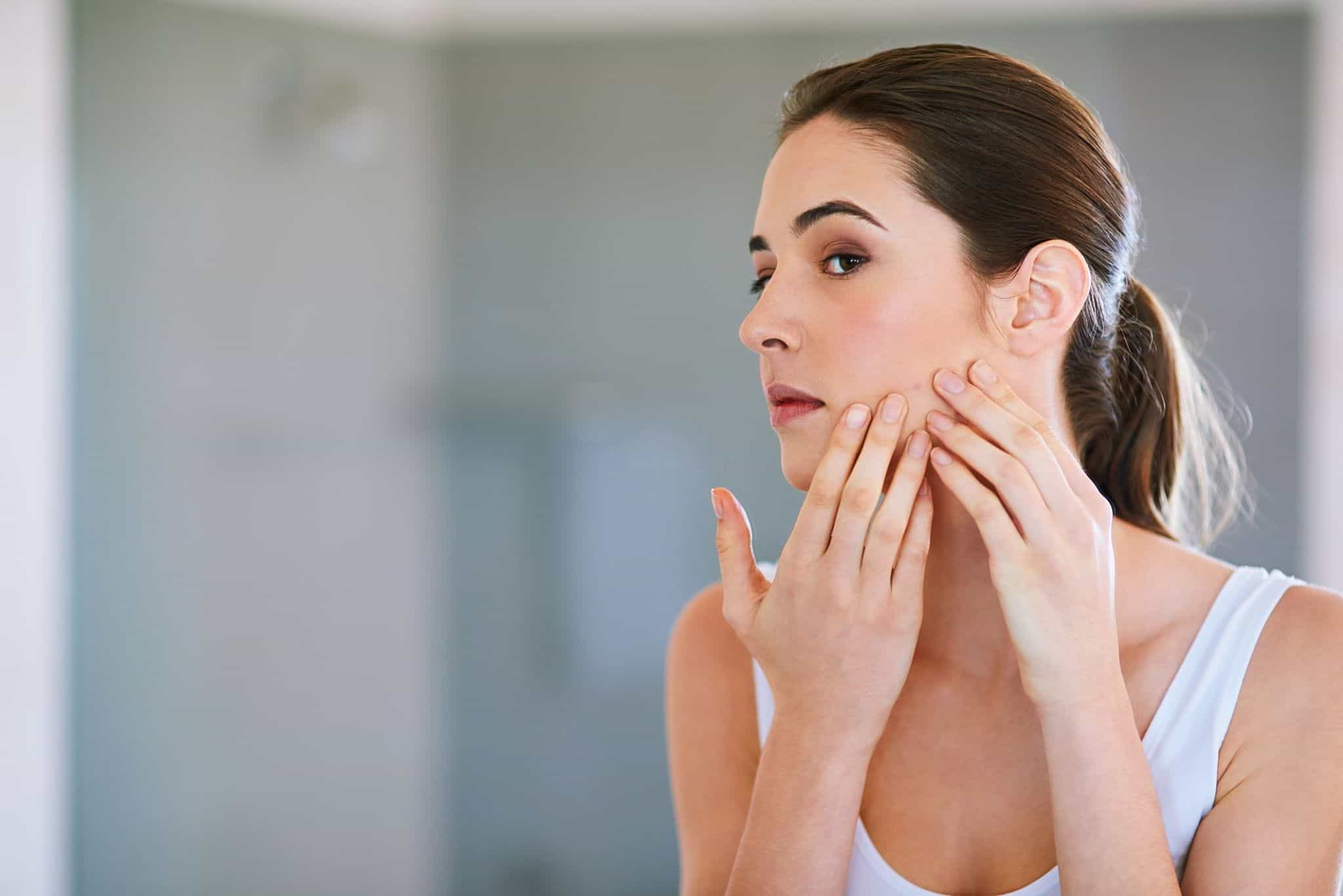 how to get rid of redness after popping a pimple